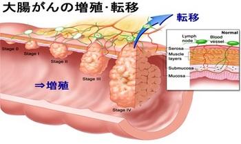 大腸がん3.jpg