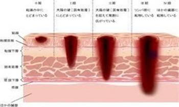 大腸がん4.jpg